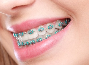 Close-up of woman's healthy smile with traditional braces