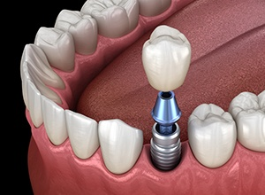 Dental implants in Meriden replace the full structure of your tooth.